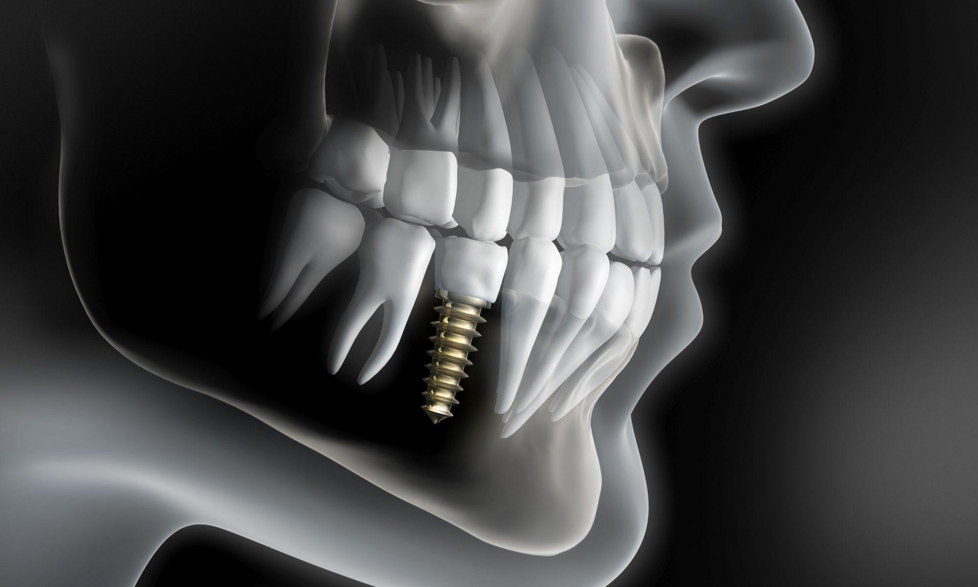 Implantat Regio 45